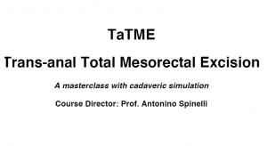 TaTME - Trans-anal Total Mesorectal Excision - 2018