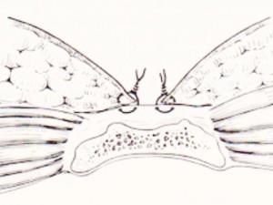 sinus-pilonidalis_6